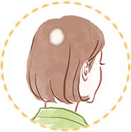 細菌(円形、多発)脱毛症イラスト