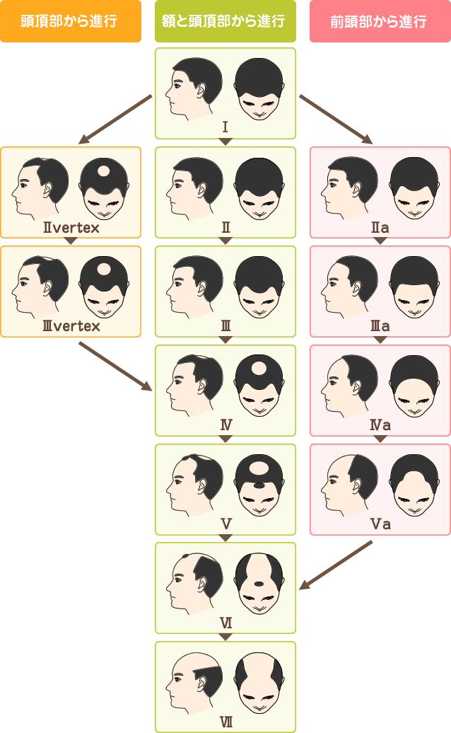 進行度の図